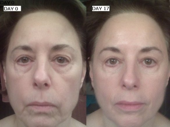 ageloc Before_After 1009