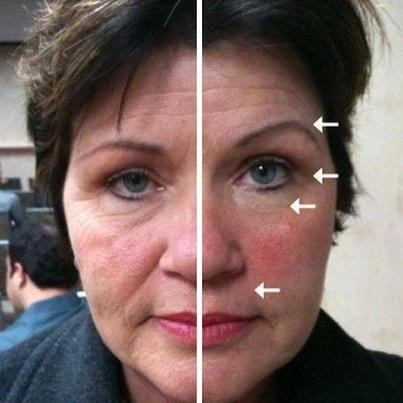 nu-skin-galvanic-spa-adios-arrugas-maquina_MLV-O-5027174367_092013
